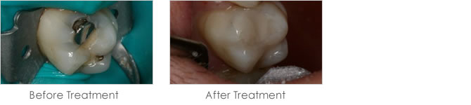 Before and after treatment with white fillings